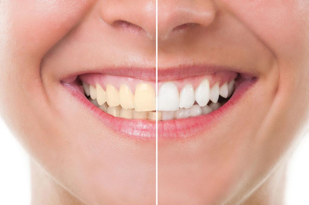 Centre dentaire Champel - Branqueamento dos dentes