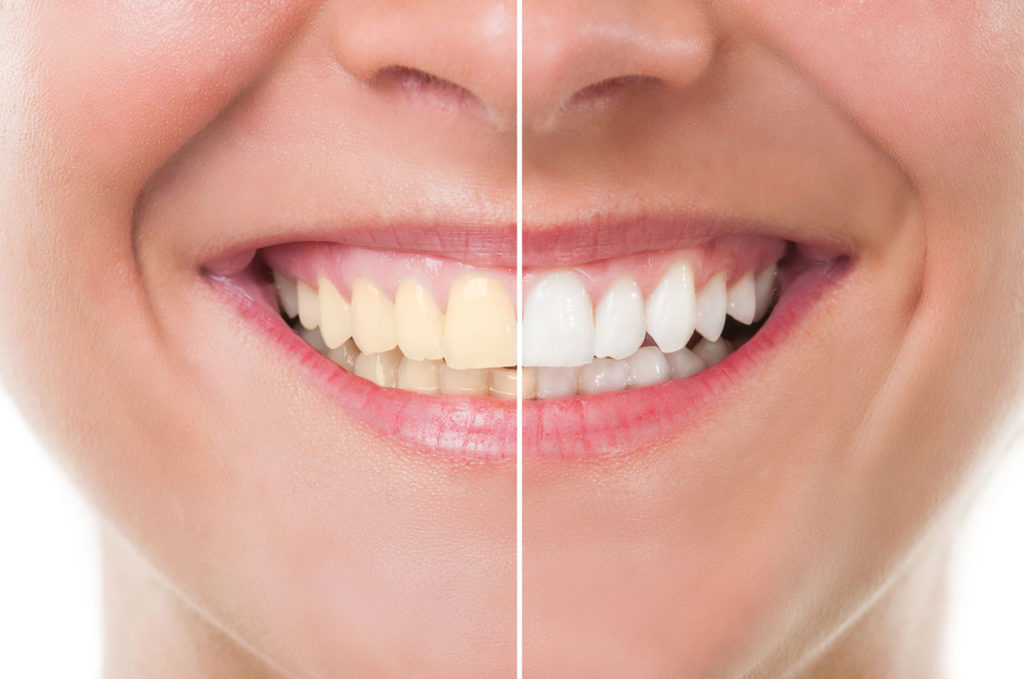 Centre dentaire Lancy - Blanchiment dentaire