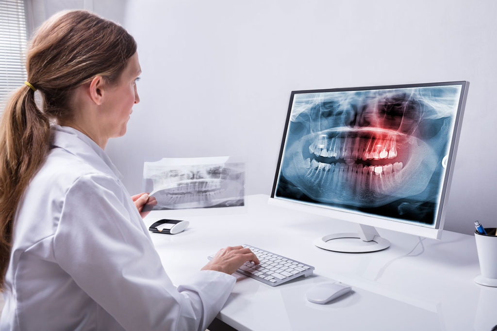 Centre Dentaire Lancy - Dentes de Sabedoria