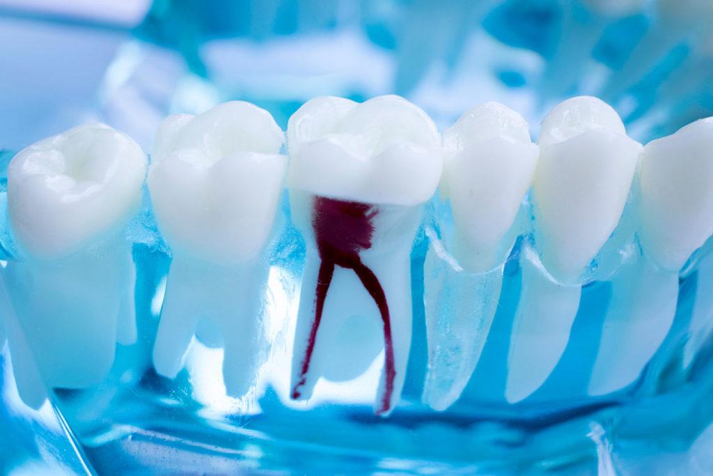 Centre dentaire Lancy - Tratamento de Raiz Dentária