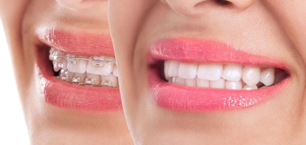 Orthodontie adulte 2 Champel