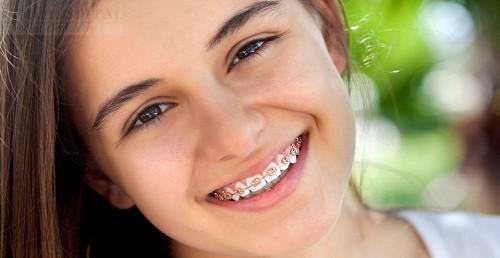 Orthodontie enfant