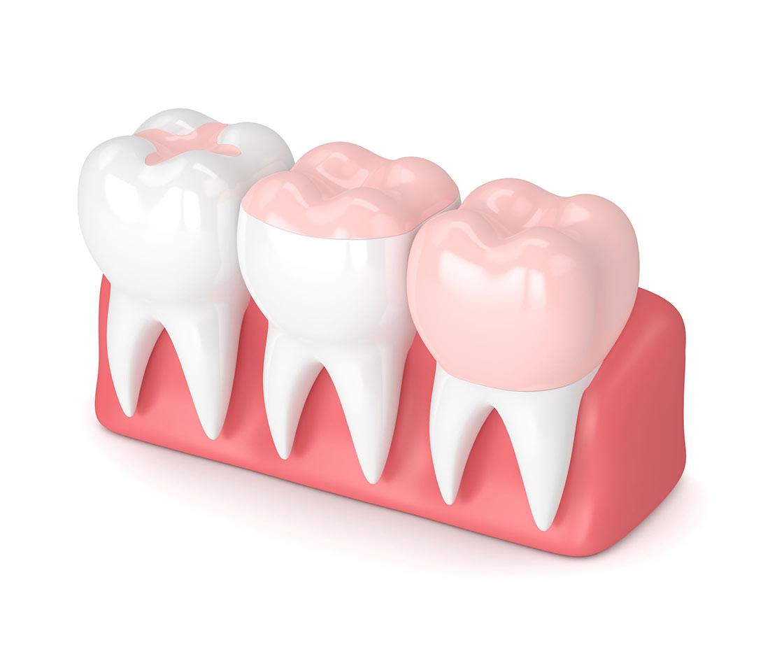 Lancy Dental Centre - Inlay