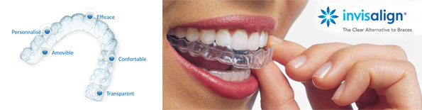 Centre dentaire Lancy - Invisalign