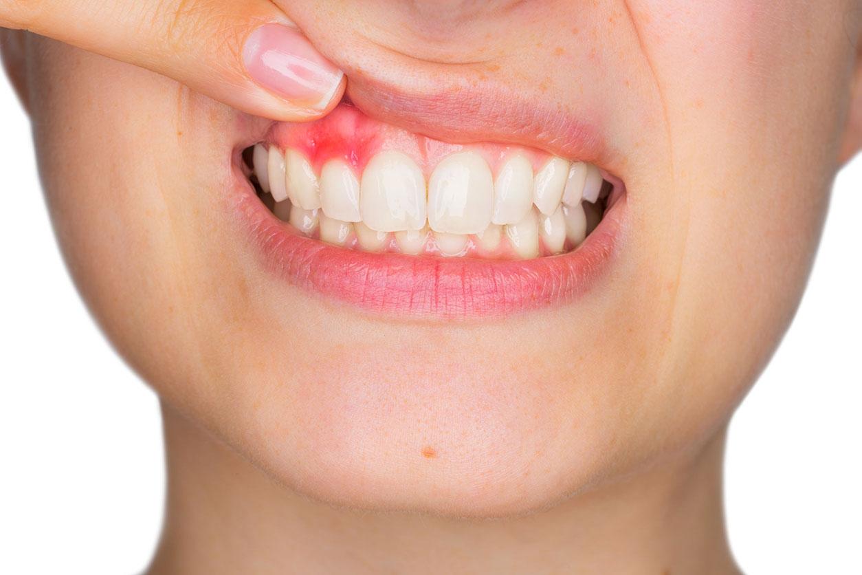 Lancy Dental Centre - cuidados com a gengiva