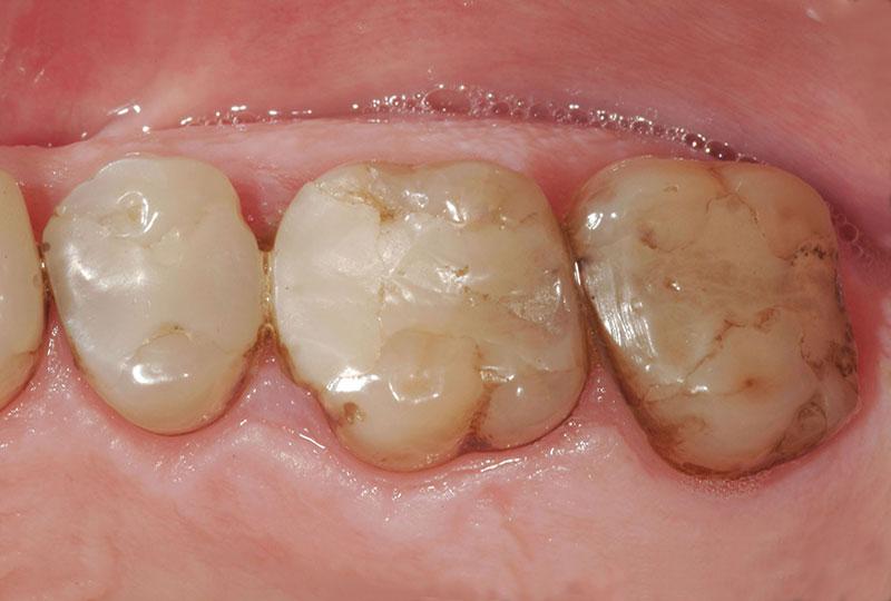 centro dentário onlay