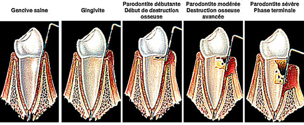 Schema zur Zahnfleischpflege verstehen
