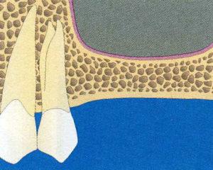 Schéma de Sinus pour la greffe et régénération osseuse