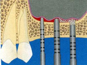 Schéma de Sinus pour la greffe et régénération osseuse2