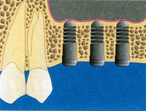Schéma de Sinus pour la greffe et régénération osseuse4